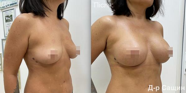 Маммопластика молочні залози збільшення грудей підтядка Сащин.png