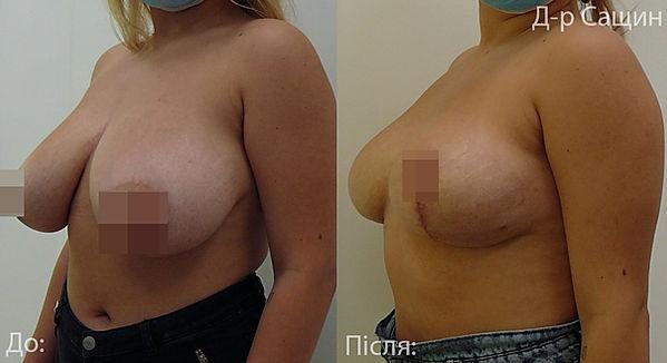 Сащин Віктор маммопластика операція.jpg