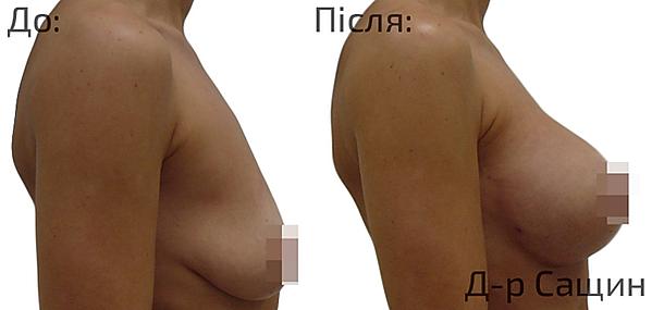 Збільшення збільшити груди львів Сащин.p