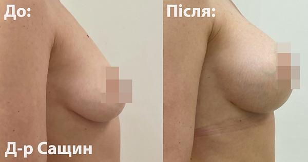Доктор хірург естетики груди Віктор Сащи