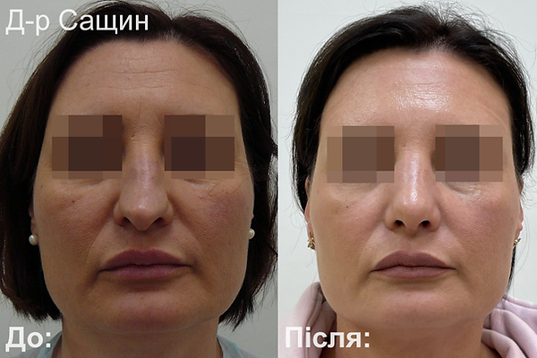 Доктор-хірург ринопластика операція ніс Сащин Віктор Володимирович.png