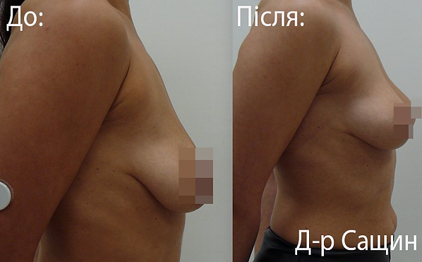 Пластичний хірург-лікар маммопластика С