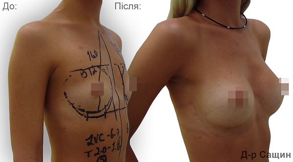 Маммопластика збільшення молочних грудей залоз імпланти жиром Віктор Сащин.png