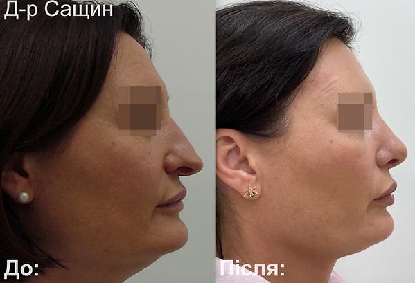 Доктор-хірург ринопластика операція ніс Сащин Віктор.png