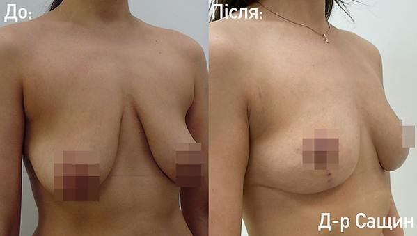 Сащин пластичний хірург маммопластика.p