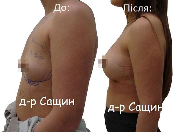 Збільшити розмір грудей Сащин.jpg