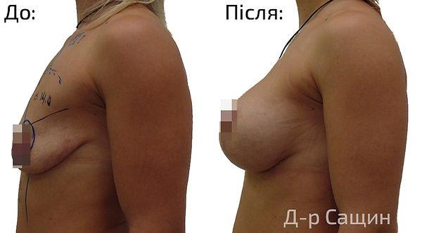 Лікар-хірург Сащин Віктор.jpg