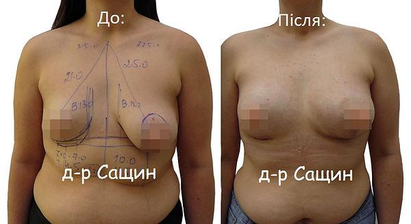Збільшення молочних залоз Сащин Віктор В