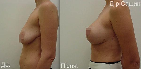 Маммопластика грудей Сащин.jpg