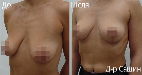 Пластичний хірург-лікар маммопластика В