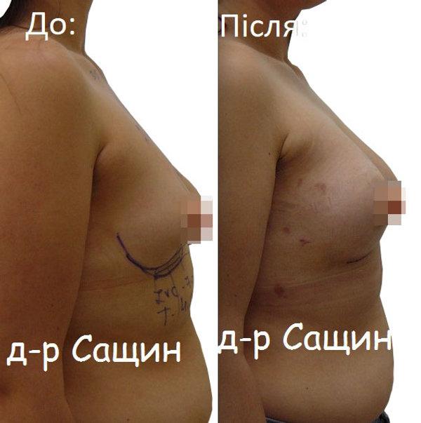Збільшення молочних залоз Сащин.jpg