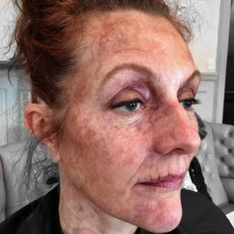 Skin textures