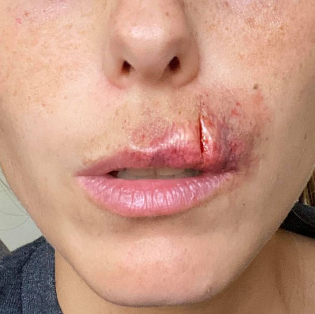 Lip cut