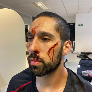Out of the Kit injuries