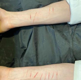 .Self-harm cuts