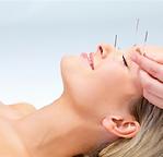#naturalbeauty #cosmetics #CAN #acupunctuur #acufacial #notox | Annita Poothuis | cosmetische acupunctuur