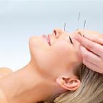 Acupunctuur allergie | Enschede Uden | Praktijk Poorthuis #naturalbeauty #cosmetics #acupunctuur #acufacial #notox