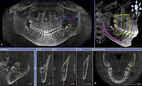 Dentist Morehead City | 3D Imaging