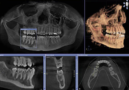 Dentist Morehead City | 3D Imaging