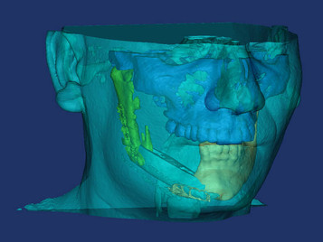 Metropolitan Hospital: 3D επανορθωτική και πλαστική χειρουργική!