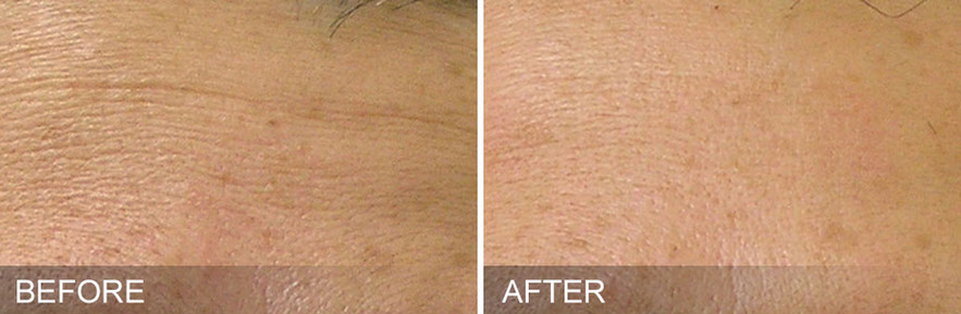 before-after-Fine Lines