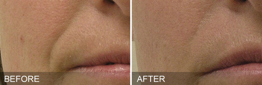 before-after-Nasolabial Folds