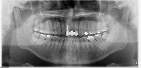 植牙曲面全口掃描
