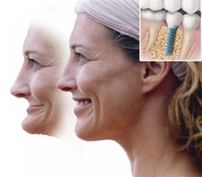 植體表面處理對於人工植牙來說是最重要的一環,植體種類是不一樣的也是因為這個植體表面處理。這個技術發達的最優良的是瑞士,瑞典的技術也相當的優秀.但是最可惜的是這兩品牌的價錢是最高的。如果您不想變老,或提早變老,好好愛護你的牙齒.
