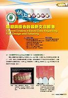Current Evidence Based Data Regarding Flap Design and Suturing 這篇文章是用來教育其他醫生在植牙時如何的將牙齦打開及縫合的最新技術
