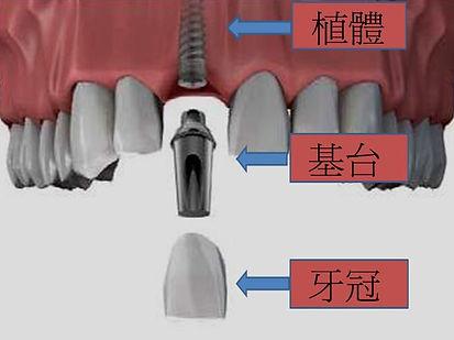 人工植牙的結構圖。包含了植體,支台齒及假牙。這三者會因為植體品牌的不一樣而有所改變,但無論是哪一種植體種類,最重要的還是植體材質與植體表面處理.雖然說植體價格比較高時,我們當消費者的會比較捨不得.但是如果可以降低植牙的失敗率所有一切都是值得的。這個我們在人工植牙101問你中會詳細的回答.