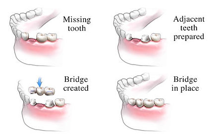 RICH CONTENT, ORIGINAL CONTENT如果您已長期投資的角度來看,人工植牙費用,,另外一個我們要考慮的角度解當牙橋出問題的時候他的代價是會拖累其他牙齒的.DISCUSSING人工植牙價錢, WHY DOES THE COST VARY SO MUCH.
