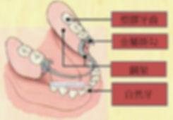活動假牙及人工植牙價格比較. 人工植牙費用當然會高很多,因為醫生說要花時間去學的投資成本非常的高,並不是說活動假牙不好只是他天生上來說就有很多的缺陷.重複一次如果真的條件允許的話即使人工植牙的費用比較高還是應該要考慮人工植牙才對.