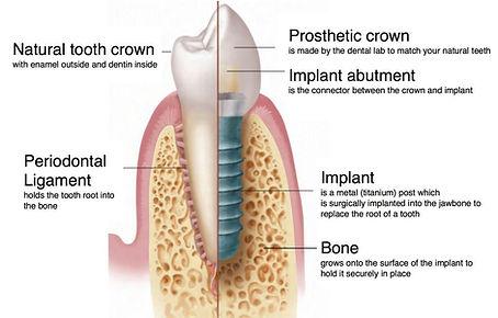 植牙與牙根的比較