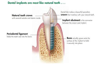 我喜歡治療台北病人的植牙, 我喜歡看到病人有功能良好使用愉快的牙齒, 我當然也希望恢復病人色澤亮麗形狀優美的植牙牙齦和植牙牙齒. 但是我更希望這些困擾病人的植牙牙周病不要發生. 所以我其實更喜歡告訴大家怎麼預防牙周病