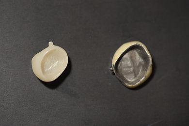全瓷冠與傳統假牙2.JPG