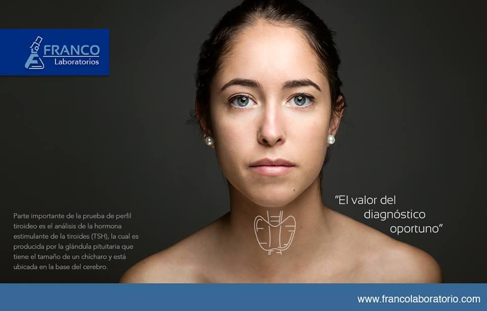 Franco Labs Advertising