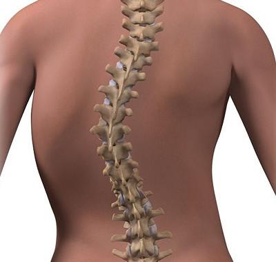 Scoliosis Care