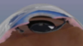 Implante estenopeico
