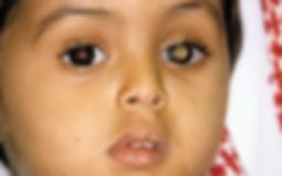 retinoblastoma leukocoria pediatric eye cancer tumor
