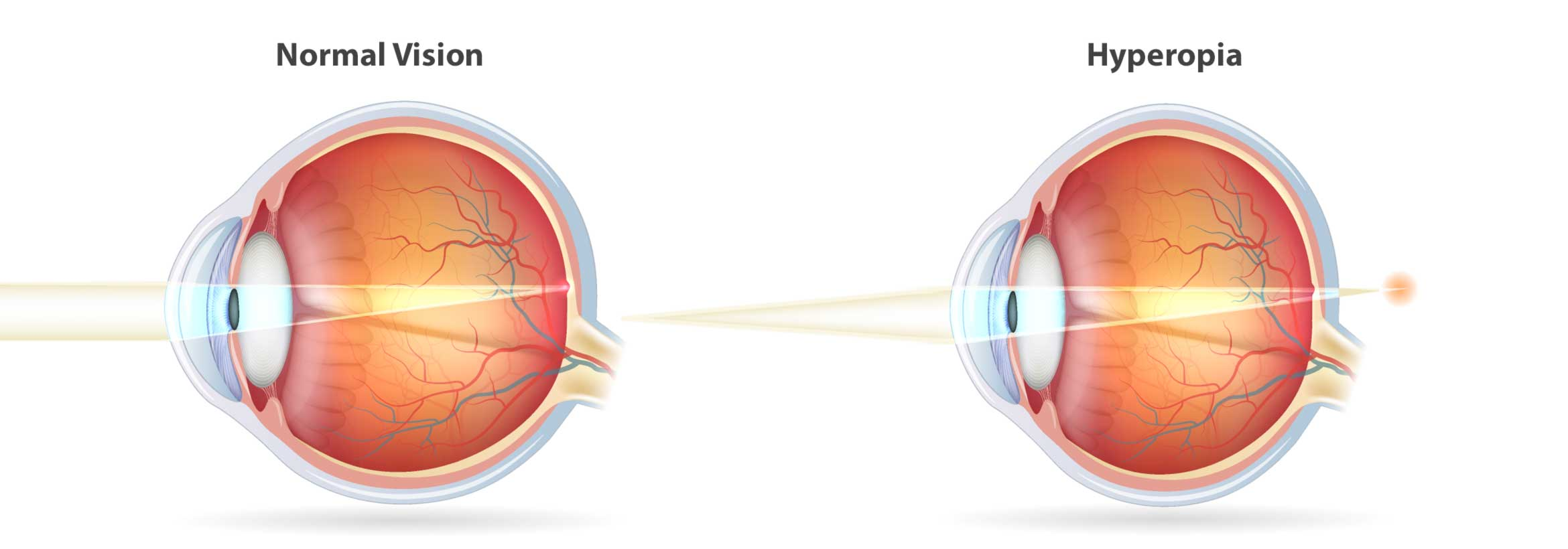 Learn more about farsightedness here.