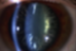 cortical cataracts.png
