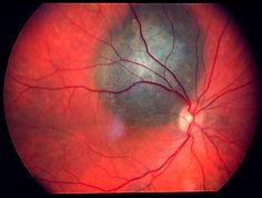 choroidal melanoma.jpg