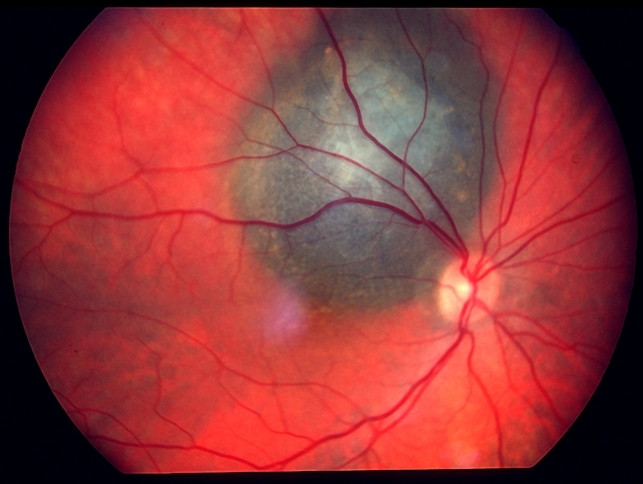 A Choroidal Melanoma, seen here can be detected during your eye exam by your Optometrist or Ophthalmologist.. This is a type of cancer that can spread (metastasize) and ultimately be fatal.