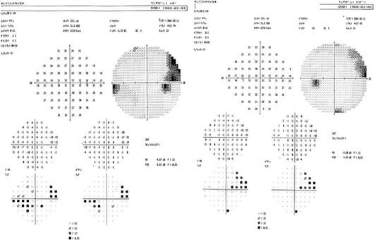 glaucoma visual field.jpg