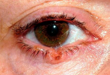 basal cell carcinoma eyelid tumor cancer