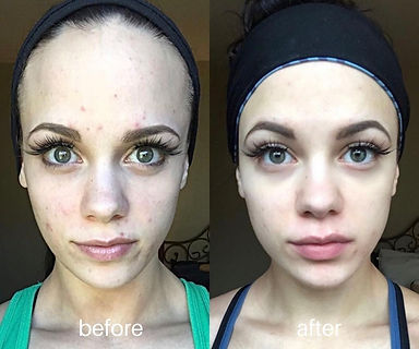 chemical_peels_before_and_after_belleviemedical_2.jpg