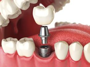 Sicher, fest, natürlich: Implantate als Zähne 3.0