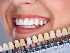 Herne hat das strahlendste Lächeln: Professionelles Bleaching vom Zahnarzt