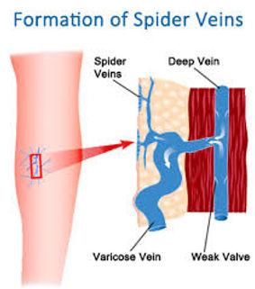 spider vein.jpg