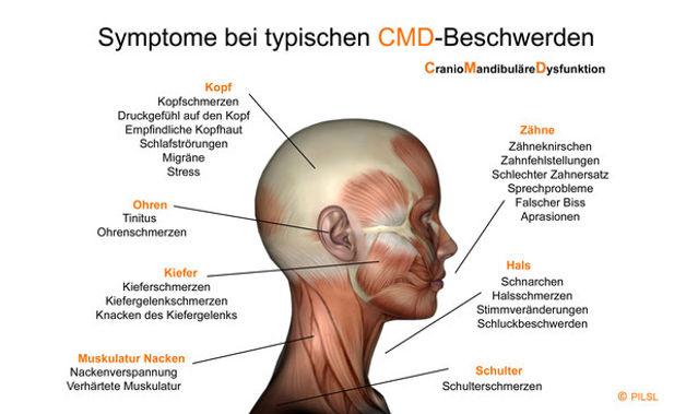 21 Symptome, die auf CMD hindeuten. Lass Dich richtig behandeln.